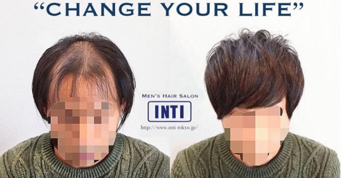 INTI(インティ)の特徴